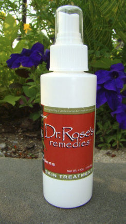 Dr Rose's Remedies Skin Treatment Spray Best Price