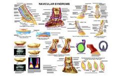 Navicular Anatomy Chart by Susan Hakola Best Price