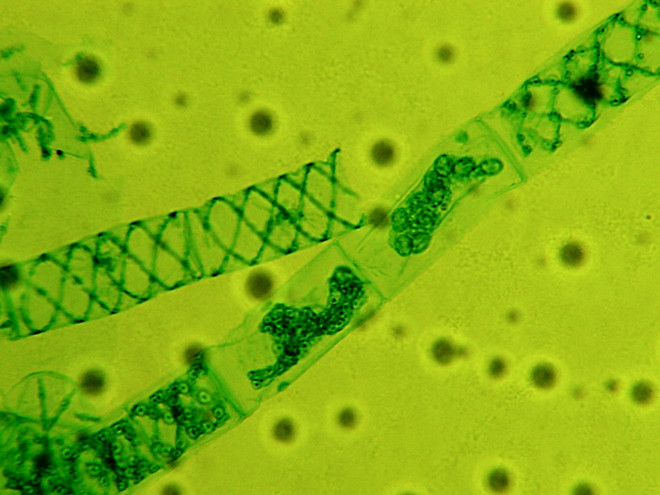 Green Alga Spirogyra