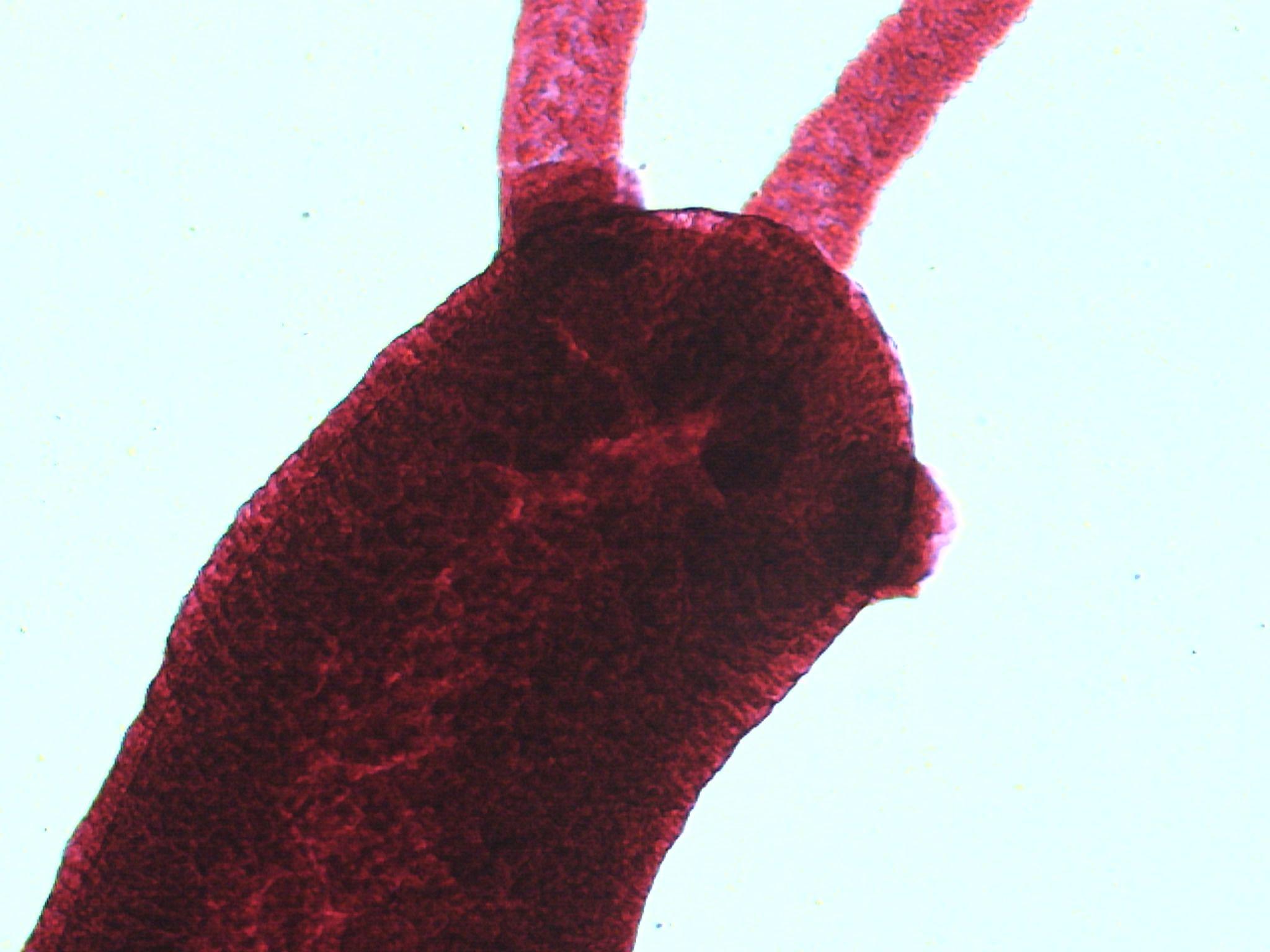 Hydra (genus)
