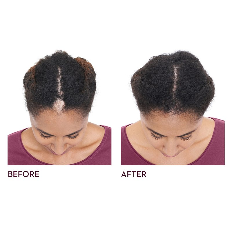 Keranique Hair Regrowth Treatment | Ulta Beauty